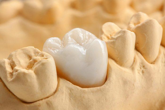 Địa chỉ nào bọc răng sứ ở Hà Nội uy tín và chất lượng nhất? 1