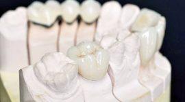 Bọc sứ răng cấm – Giải pháp bảo tồn răng cấm bền chắc lâu dài