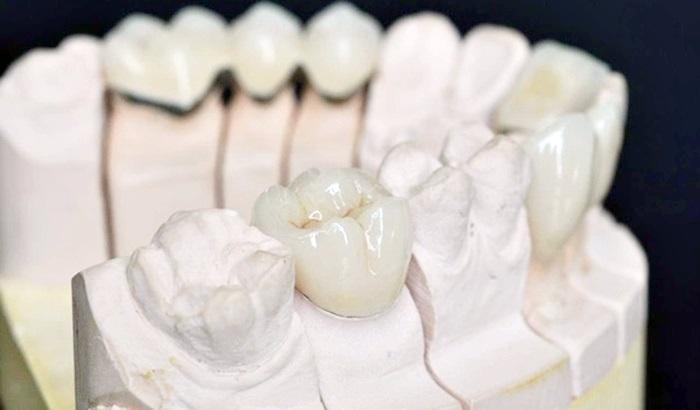 Bọc sứ răng cấm – Giải pháp bảo tồn răng cấm bền chắc lâu dài 1
