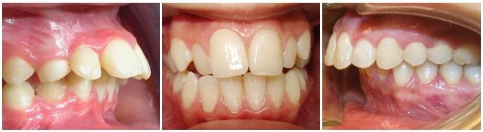 Cách chữa răng hô hiệu quả triệt để mà an toàn, thẩm mỹ cao 1