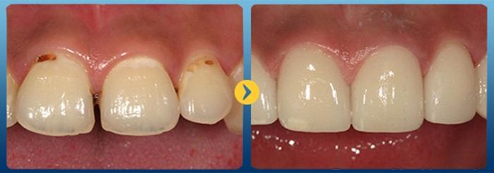 chân răng bị đen - 2