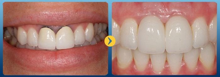 trám răng sứ - 2
