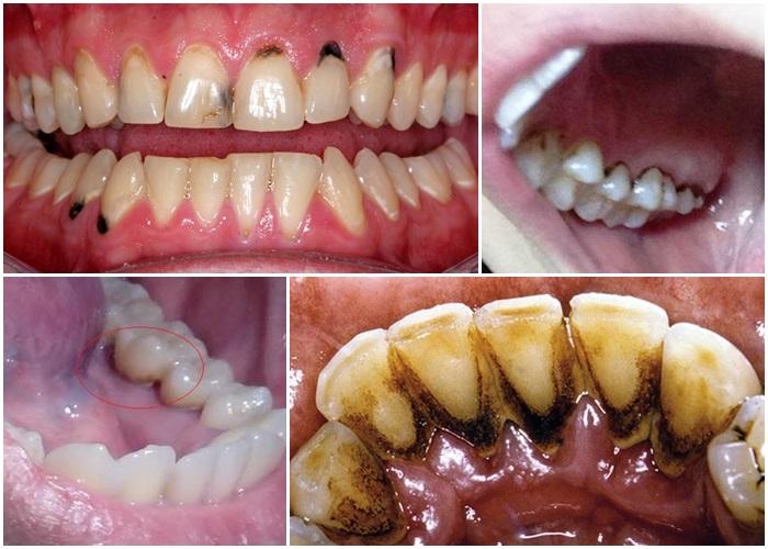 Răng bị đen - Nguyên nhân và cách khắc phục