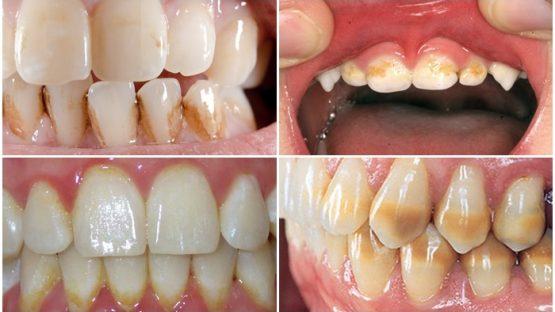 Chân răng bị vàng do đâu? Làm gì để răng trắng đẹp trở lại?