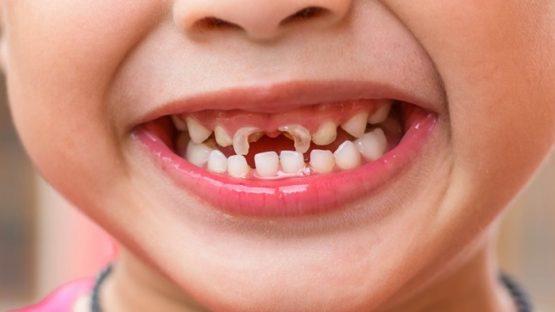 Có nên trám răng cho trẻ không hay phải xử lý thế nào?