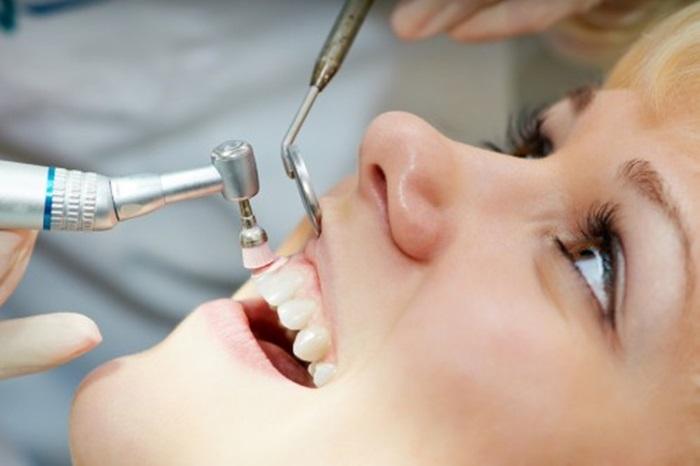 Đánh bóng răng là gì và những thông tin cơ bản bạn nên biết 2
