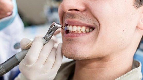 Đánh bóng răng là gì và những thông tin cơ bản bạn nên biết