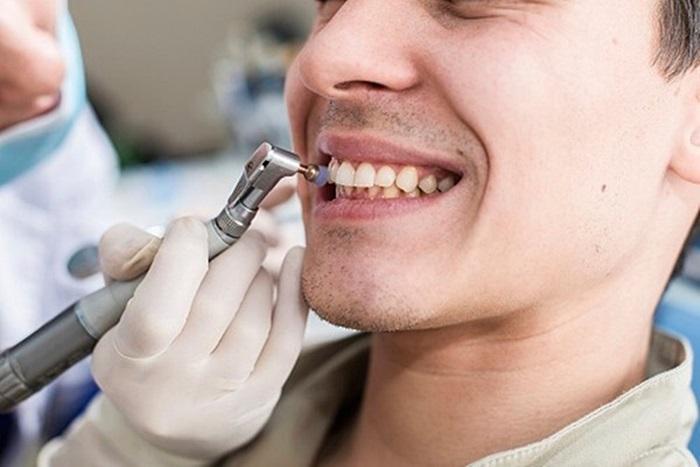 Đánh bóng răng là gì và những thông tin cơ bản bạn nên biết 1