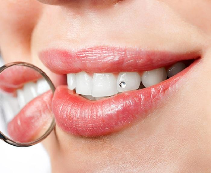 Làm răng kim cương bằng công nghệ tiên tiến E.Las 1