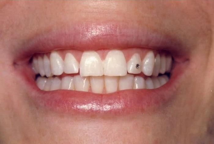 Đính kim cương lên răng - 5
