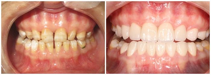 giải pháp nào cho răng thưa - 3