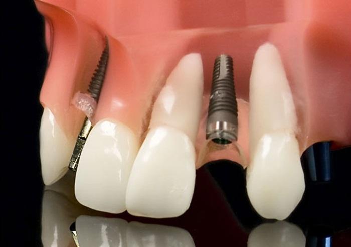 Trồng răng nanh đã mất bằng kỹ thuật cấy ghép implant 1