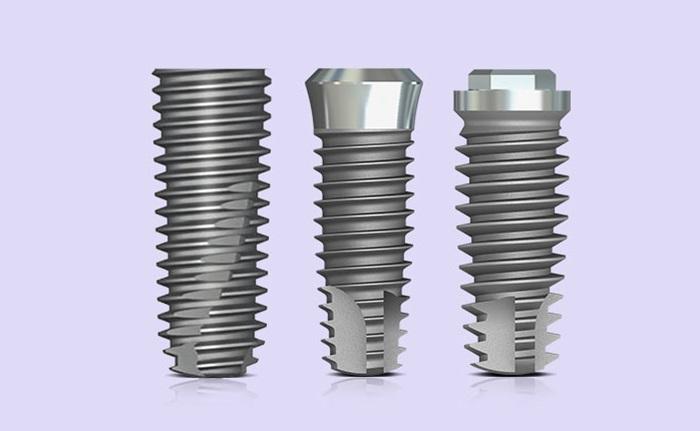 Implant loại nào tốt nhất được nhiều người chọn lựa? 4