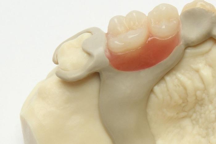 Trồng răng thẩm mỹ - Kỹ thuật phục hình an toàn, bền, đẹp 2