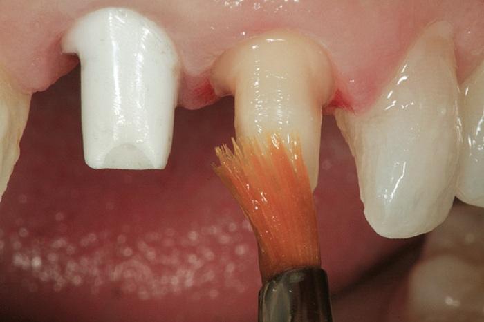 Mài răng cửa - Tổng hợp các thông tin liên quan cần biết 3