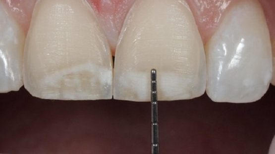 Mài răng cửa – Tổng hợp các thông tin liên quan cần biết