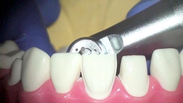 Mài răng giá bao nhiêu tiền 1 cái? Có đắt không? 2