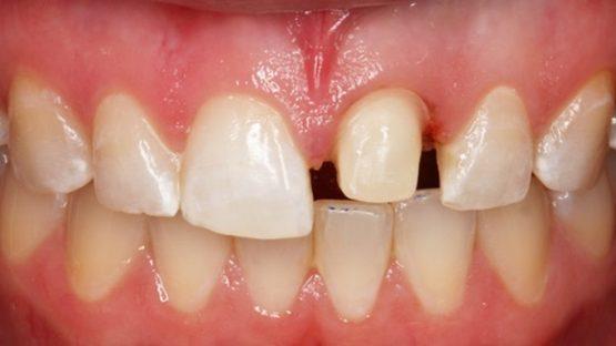 Mài răng giá bao nhiêu tiền 1 cái? Có đắt không?