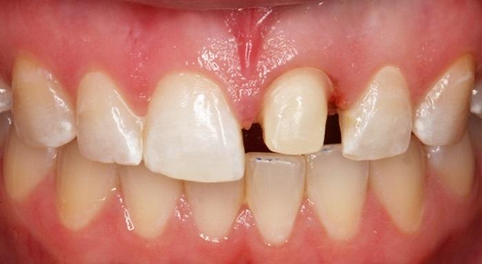 Mài răng giá bao nhiêu tiền 1 cái? Có đắt không? 1