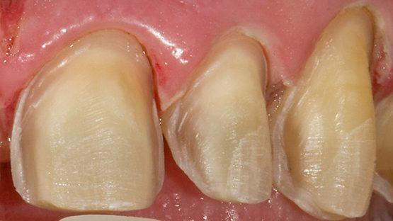Mài răng nanh và những lưu ý quan trọng bạn nên biết
