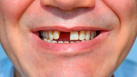Mất chân răng phải làm sao để lấy lại cảm giác ăn nhai