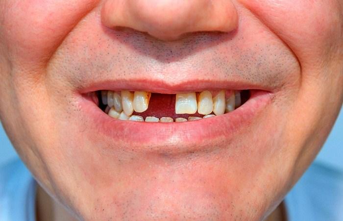 Mất chân răng phải làm sao 1