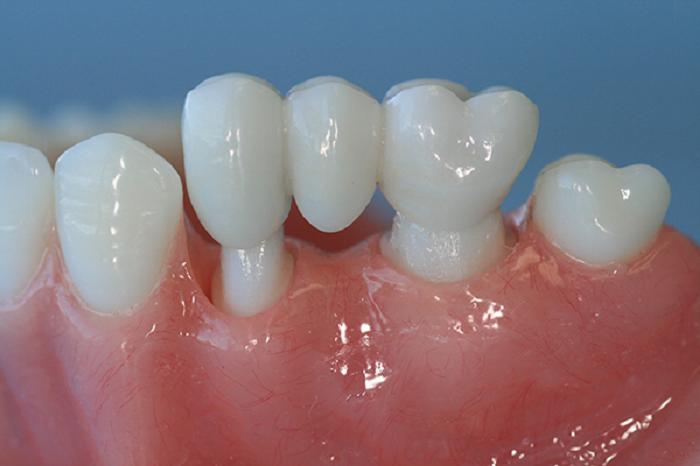 Mất chân răng phải làm sao 2