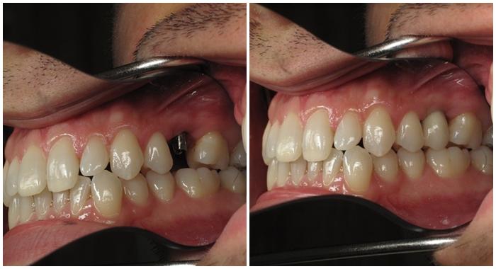 Mất chân răng phải làm sao 3