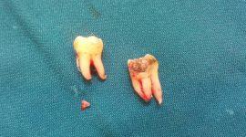 Nhổ chân răng còn sót – Cách nhận biết và xử lý chuẩn an toàn