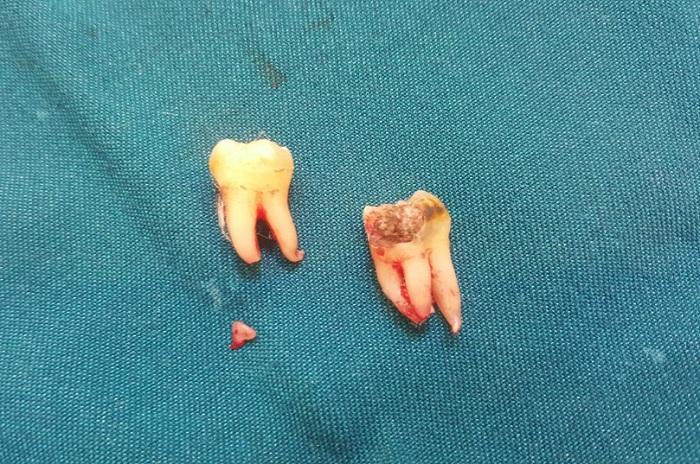 Đếm số lượng chân răng nhổ được so sánh với số lượng chân răng chuẩn