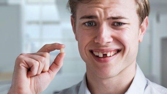 Nhổ răng lâu rồi trồng lại được không? Cách nào hiệu quả nhất?