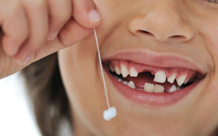 Nhổ răng sâu cho trẻ - Những thông tin cơ bản cha mẹ nên biết 3