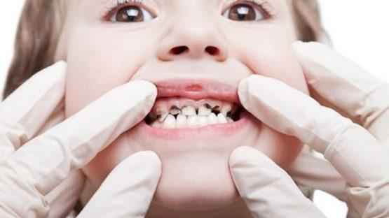 Nhổ răng sâu cho trẻ em – Những thông tin cơ bản cha mẹ nên biết