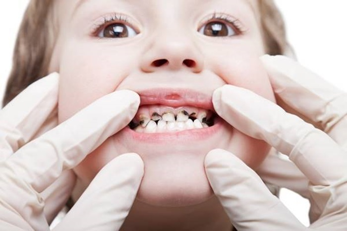 Nhổ răng sâu cho trẻ - Những thông tin cơ bản cha mẹ nên biết 1