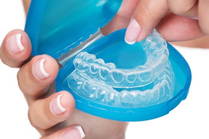 Niềng răng invisalign - Giải pháp chỉnh nha an toàn, thẩm mỹ cao 2