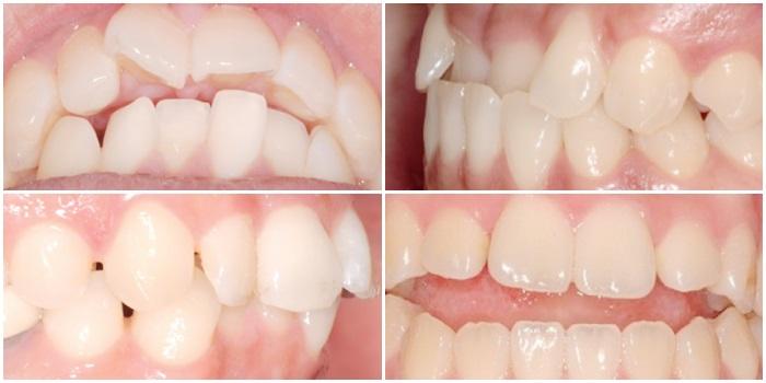 Niềng răng eCligner - Chỉnh nha vô hình, thẩm mỹ hiệu quả 4