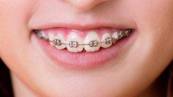 Bị hở lợi niềng răng có hiệu quả không?