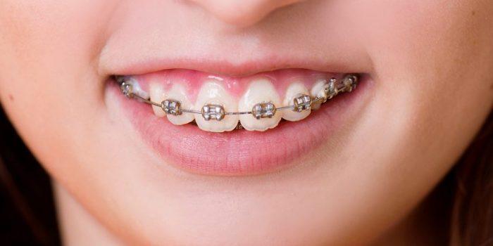 Niềng răng hô nhẹ mất bao lâu thì răng hết hô, đều đẹp? 1