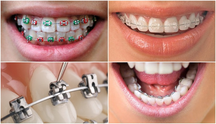 Nên chọn niềng răng loại nào tốt nhất hiện nay? 2