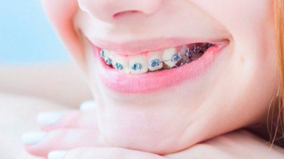 Nên chọn niềng răng loại nào tốt nhất hiện nay?