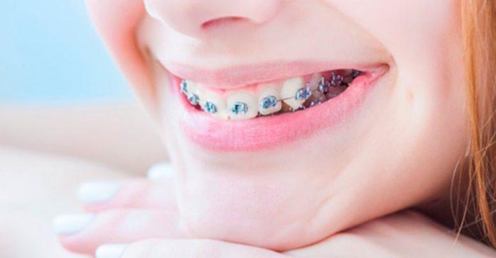 Nên chọn niềng răng loại nào tốt nhất hiện nay? 1