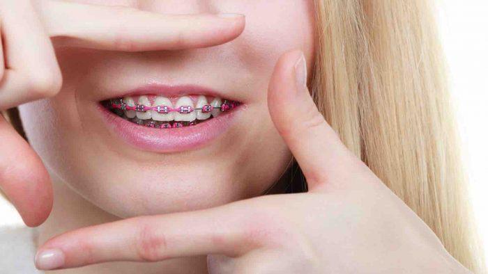 Niềng răng ở đâu an toàn v 1à uy tín nhất hiện nay?