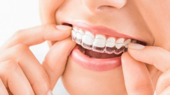 Niềng răng trong suốt Clear Aligner là gì? Hiệu quả điều trị có tốt không?