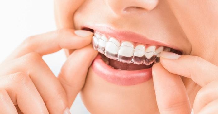 Niềng răng hô nhẹ mất bao lâu thì răng hết hô, đều đẹp? 3