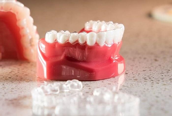 Niềng răng 3D Clear giá bao nhiên tiền? Mức giá chuẩn điều trị? 2