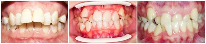 Niềng răng V Line cho răng đẹp, cằm thon gọn không cần phẫu thuật 2