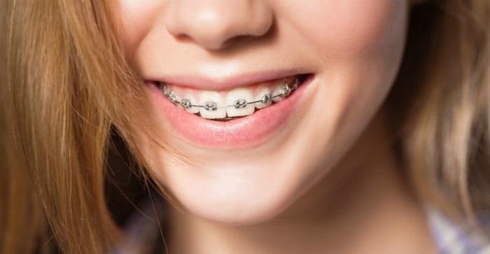 Niềng răng V Line cho răng đẹp, cằm thon gọn không cần phẫu thuật 1