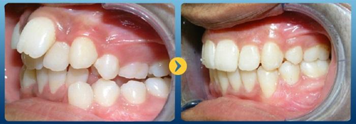 Các trường hợp niềng răng - Nha Khoa Kim