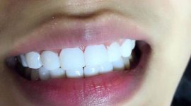 Phủ sứ nano – Răng đẹp chuẩn tỷ lệ vàng – Nhẹ nhàng không xâm lấn