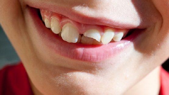 Răng bị gãy còn chân răng phải làm sao để ăn nhai lại bình thường